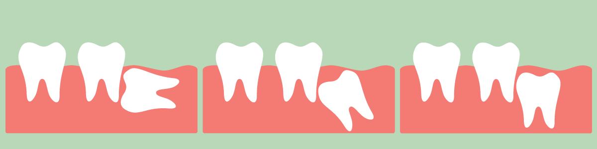 智歯(親知らず)等の抜歯
